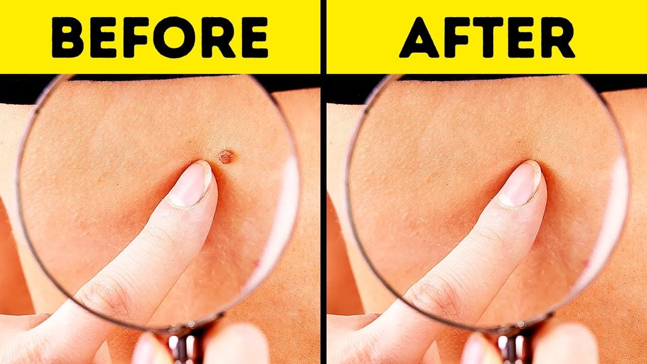 10 effective ways to remove skin tags naturally.